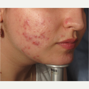 18-24 year old woman treated with Acne before 2997868
