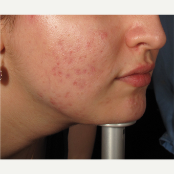 18-24 year old woman treated with Acne after 2997868