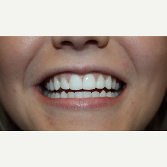 17 or under year old woman treated with Invisalign in 9 months after 3126753