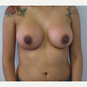 Breast Augmentation after 3054743
