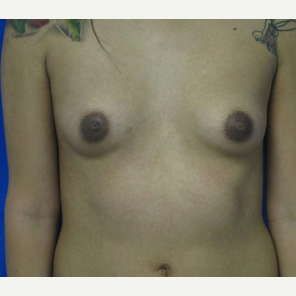 Breast Augmentation before 3054743