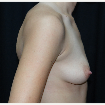 25-34 year old woman treated with Breast Augmentation before 3304274