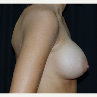 25-34 year old woman treated with Breast Augmentation after 3304274