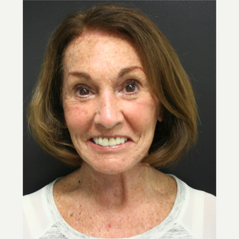65-74 year old woman treated with SMAS Facelift after 3405796