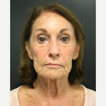 65-74 year old woman treated with SMAS Facelift before 3405796