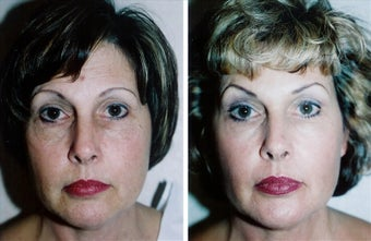 Laser Resurfacing before 1331463