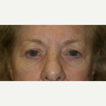 75 and up year old woman treated with Upper Eyelid Surgery before 3206659