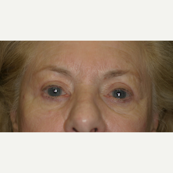 75 and up year old woman treated with Upper Eyelid Surgery after 3206659