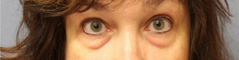 45-54 year old woman treated with Eye Bags Treatment before 1580198