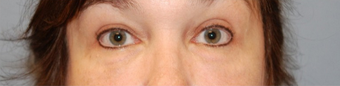 45-54 year old woman treated with Eye Bags Treatment after 1580198