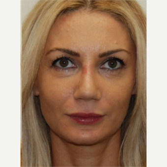 35-44 year old woman treated with Rhinoplasty after 3388016