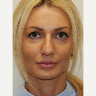 35-44 year old woman treated with Rhinoplasty before 3388016