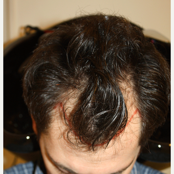 FUE Hair Restoration  2,200 Grafts before 3645946