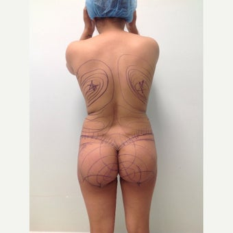 18-24 year old woman treated with Brazilian Butt Lift Revision 1908879