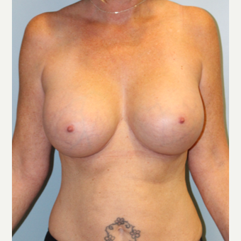 45-54 year old woman treated with Breast Augmentation after 3709858