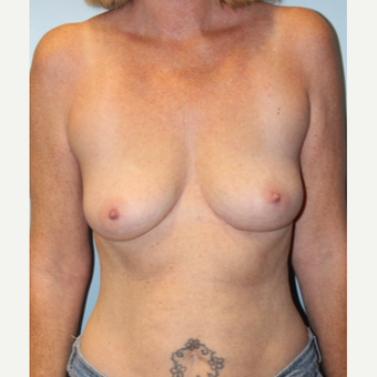 45-54 year old woman treated with Breast Augmentation before 3709858
