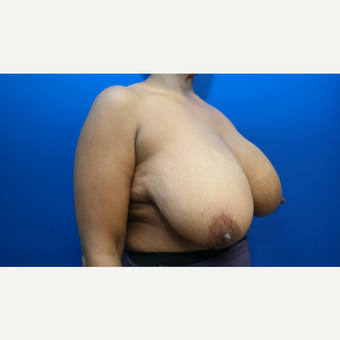 45-54 year old woman treated with Breast Reduction before 3104187