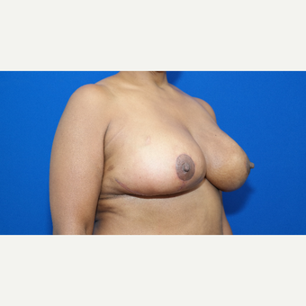 45-54 year old woman treated with Breast Reduction after 3104187