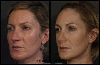Sculptra for Volume and Contouring before 317027