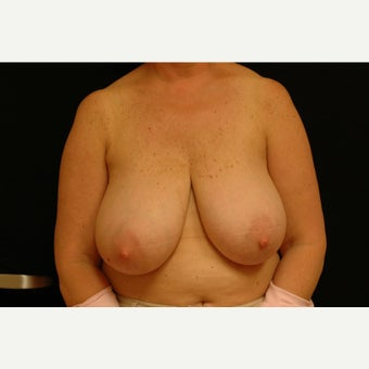 55-64 year old woman treated with Breast Lift before 1564030