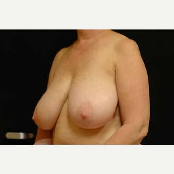 55-64 year old woman treated with Breast Lift 1564030