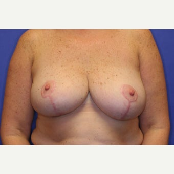 55-64 year old woman treated with Breast Lift after 1564030