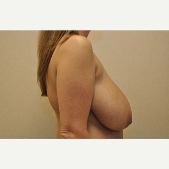 35-44 year old woman treated with Breast Reduction before 3103132