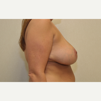 35-44 year old woman treated with Breast Reduction after 3103132