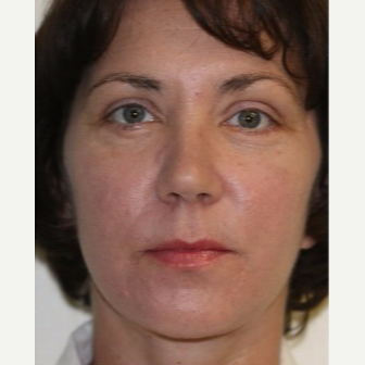 43 year old woman treated with Restylane Silk after 3665001