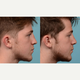 18-24 year old man treated with Rhinoplasty/Septoplasty after 3041964