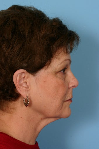 Lower facelift, upper blepharoplasty and facial rejuvenation before 86356
