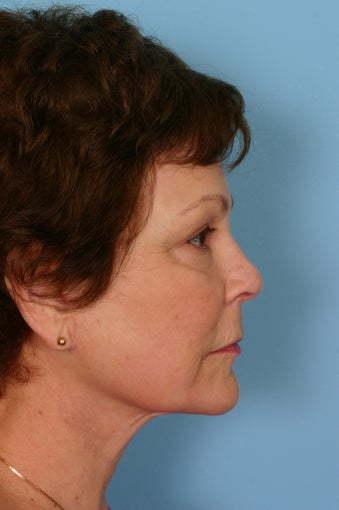 Lower facelift, upper blepharoplasty and facial rejuvenation after 86356