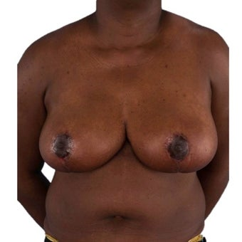 45-54 year old woman treated with Breast Reduction after 1935383