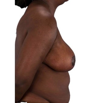 45-54 year old woman treated with Breast Reduction 1935383