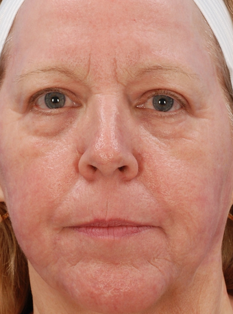 Laser Resurfacing Before & After after 1127265