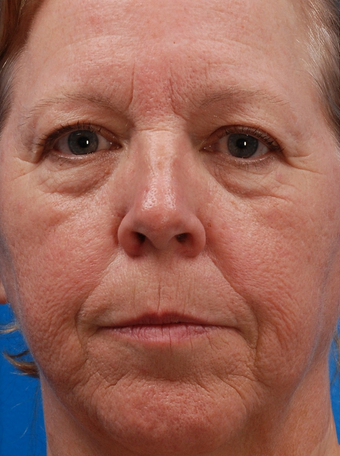 Laser Resurfacing Before & After before 1127265
