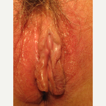 33 y.o. with fusion of labia obliterating clitoral exposure and affecting orgasmic ability after 3310087