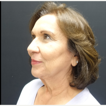65-74 year old woman treated with Neck Lift before 3244944