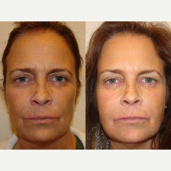 55-64 year old woman treated with Fillers and Botox before 1566206