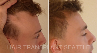 25-34 year old man treated with Hair Transplant after 2989574