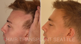 25-34 year old man treated with Hair Transplant before 2989574