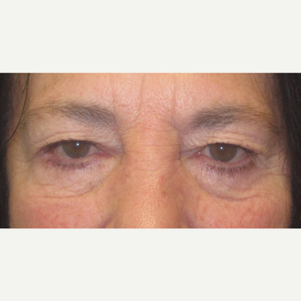 65-74 year old woman treated with Eyelid Surgery before 3550329