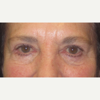 65-74 year old woman treated with Eyelid Surgery after 3550329