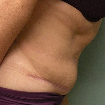 45-54 year old woman treated with Tummy Tuck 2873814