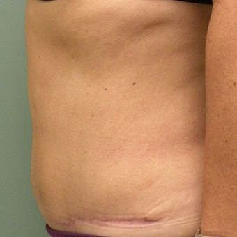 45-54 year old woman treated with Tummy Tuck after 2873814