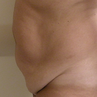 45-54 year old woman treated with Tummy Tuck before 2873814