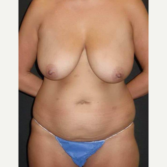 35-44 year old woman treated with Mommy Makeover before 3434661