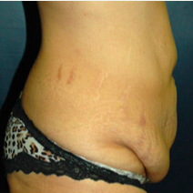 37 year old woman treated with Tummy Tuck before 3578401