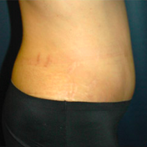 37 year old woman treated with Tummy Tuck after 3578401