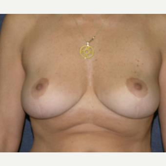45-54 year old woman treated with Breast Implants before 3455496